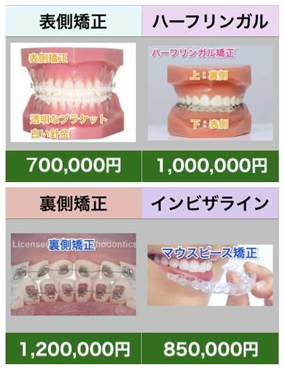 歯科 矯正